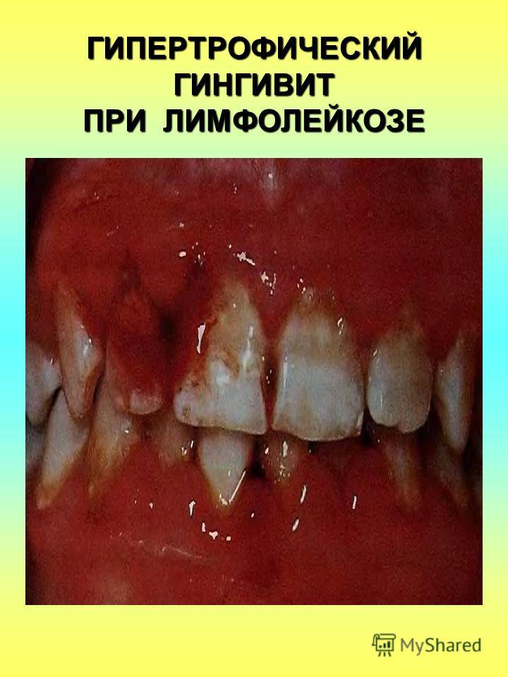 ГИПЕРТРОФИЧЕСКИЙ ГИНГИВИТ ПРИ ЛИМФОЛЕЙКОЗЕ