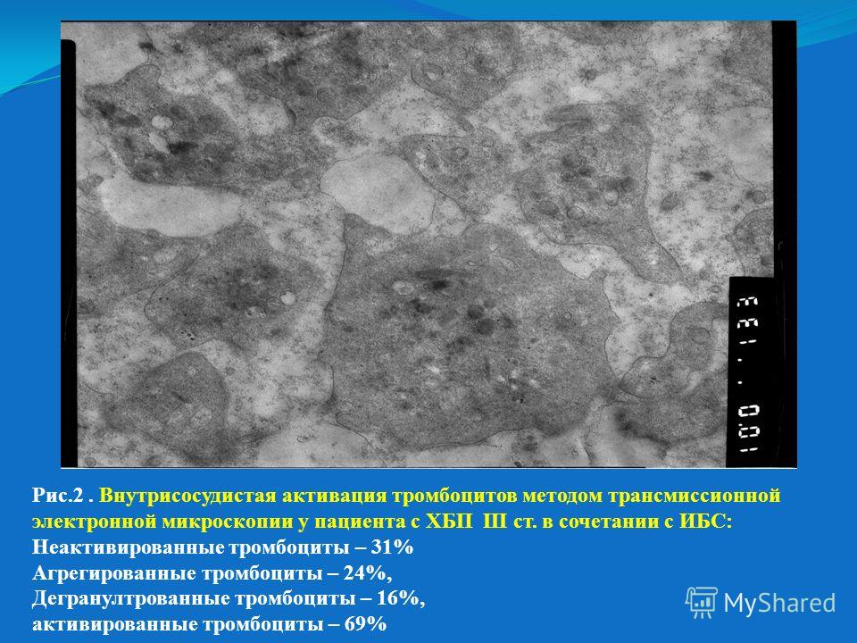 Рис.2. Внутрисосудистая активация тромбоцитов методом трансмиссионной электронной микроскопии у пациента с ХБП III ст. в сочетании с ИБС: Неактивированные тромбоциты – 31% Агрегированные тромбоциты – 24%, Дегранултрованные тромбоциты – 16%, активиров