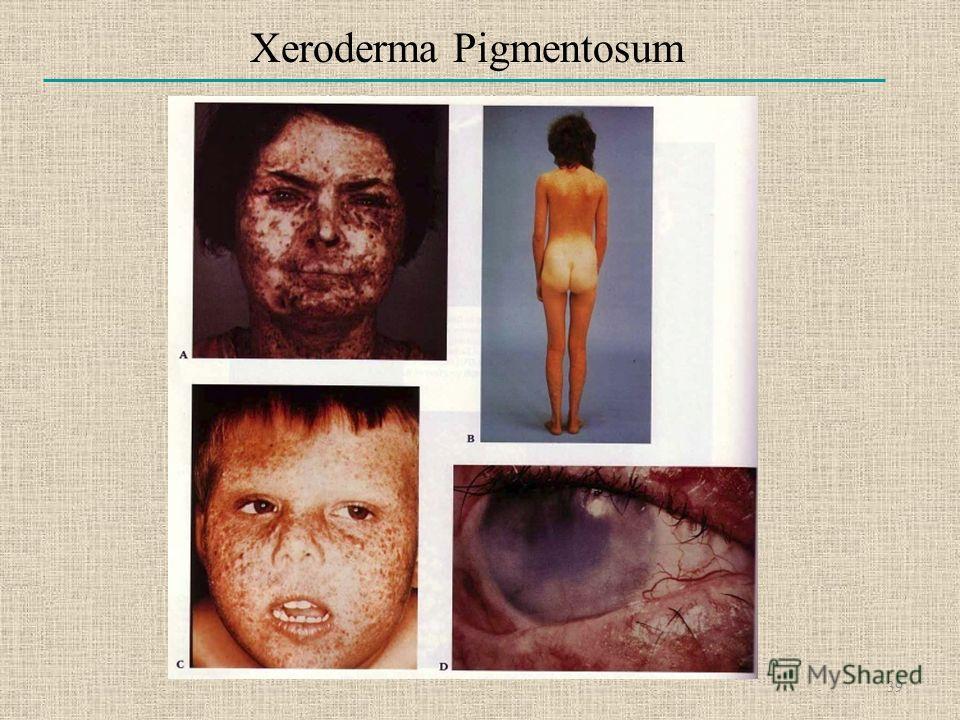 Xeroderma Pigmentosum 39