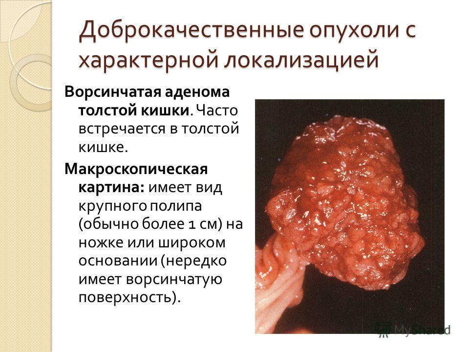 Доброкачественные опухоли с характерной локализацией Ворсинчатая аденома толстой кишки. Часто встречается в толстой кишке. Макроскопическая картина : имеет вид крупного полипа ( обычно более 1 см ) на ножке или широком основании ( нередко имеет ворси