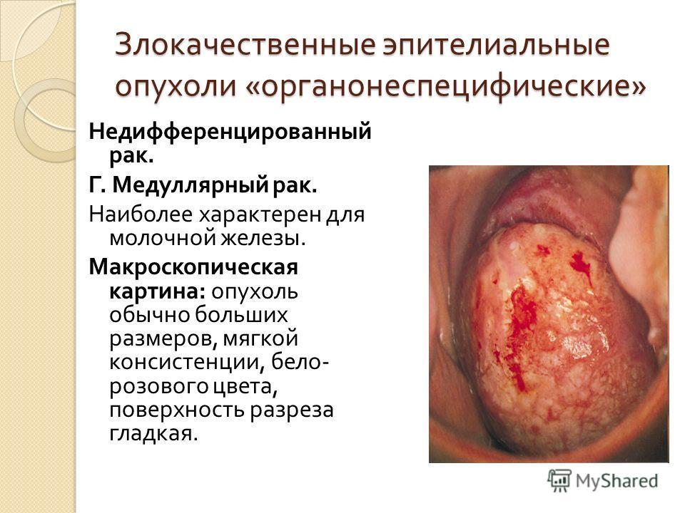 Злокачественные эпителиальные опухоли « органонеспецифические » Недифференцированный рак. Г. Медуллярный рак. Наиболее характерен для молочной железы. Макроскопическая картина : опухоль обычно больших размеров, мягкой консистенции, бело - розового цв