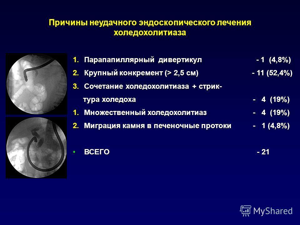 Причины неудачного эндоскопического лечения холедохолитиаза 1.Парапапиллярный дивертикул - 1 (4,8%) 2.Крупный конкремент (> 2,5 см) - 11 (52,4%) 3.Сочетание холедохолитиаза + стрик- тура холедоха - 4 (19%) тура холедоха - 4 (19%) 1.Множественный холе