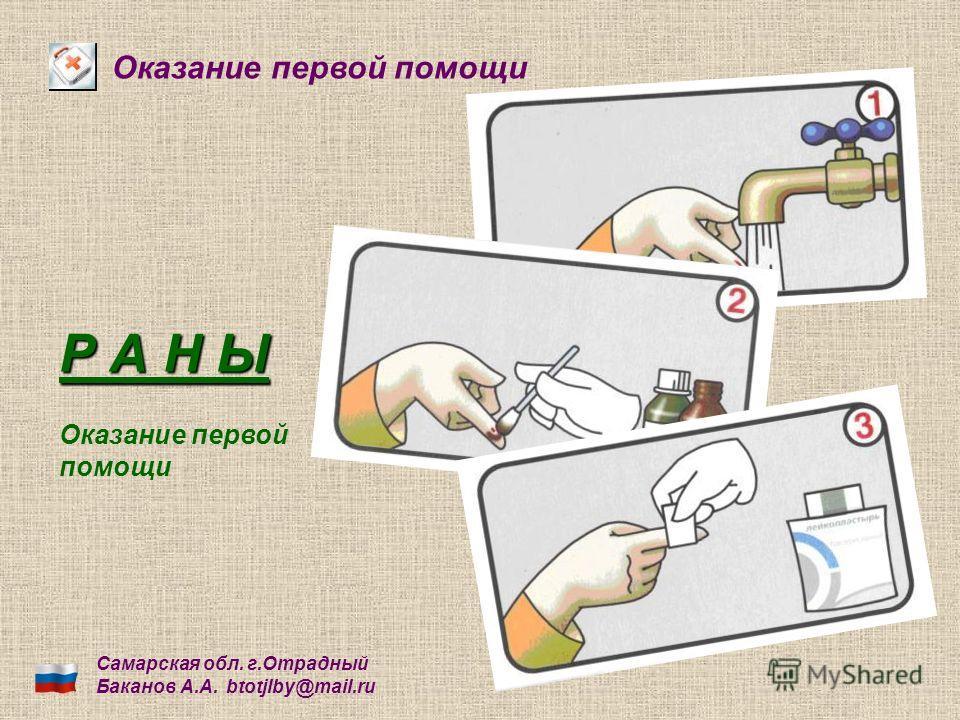 Оказание первой помощи Р А Н Ы Самарская обл. г.Отрадный Баканов А.А. btotjlby@mail.ru Оказание первой помощи