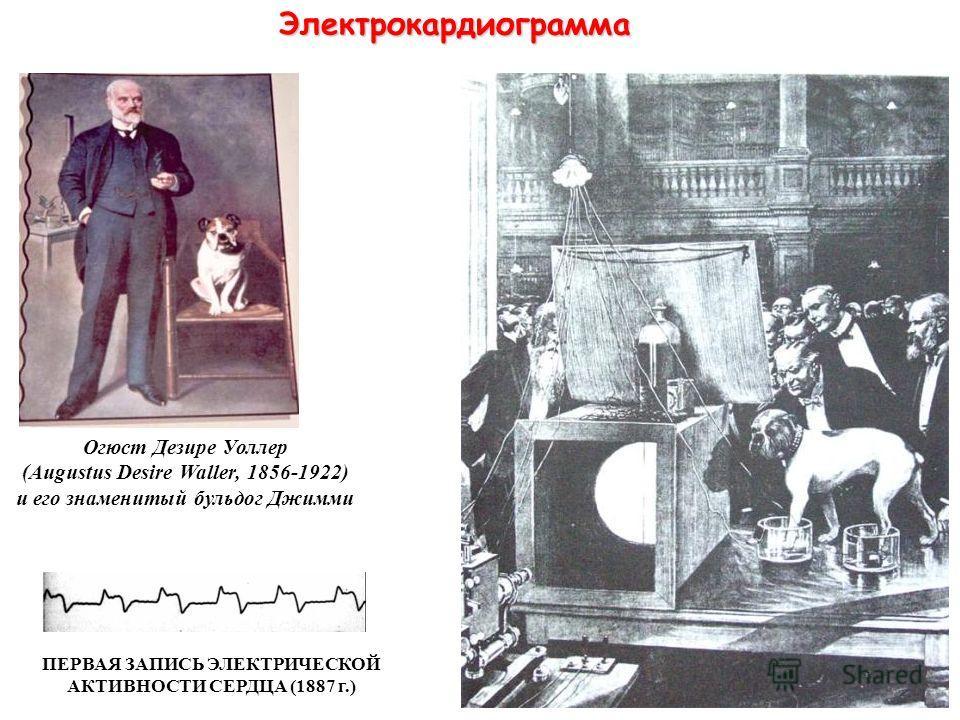 Электрокардиограмма Огюст Дезире Уоллер (Augustus Desire Waller, 1856-1922) и его знаменитый бульдог Джимми ПЕРВАЯ ЗАПИСЬ ЭЛЕКТРИЧЕСКОЙ АКТИВНОСТИ СЕРДЦА (1887 г.)