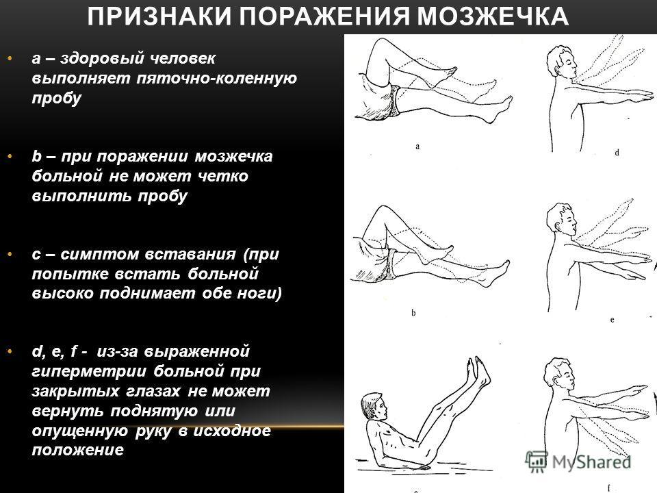 ПРИЗНАКИ ПОРАЖЕНИЯ МОЗЖЕЧКА а – здоровый человек выполняет пяточно-коленную пробу b – при поражении мозжечка больной не может четко выполнить пробу с – симптом вставания (при попытке встать больной высоко поднимает обе ноги) d, e, f - из-за выраженно