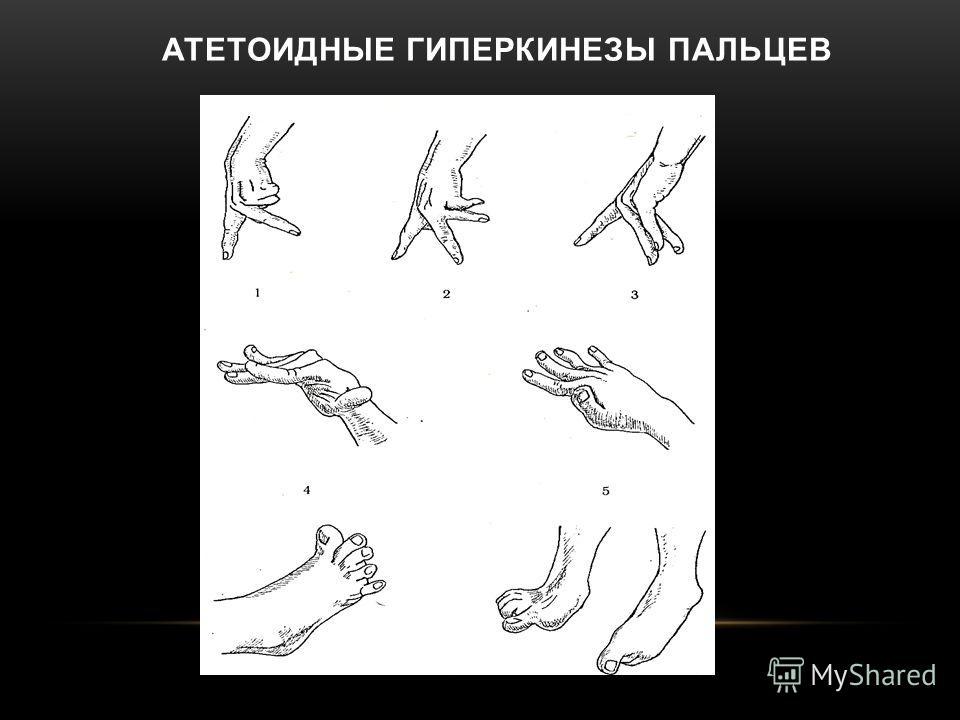 АТЕТОИДНЫЕ ГИПЕРКИНЕЗЫ ПАЛЬЦЕВ