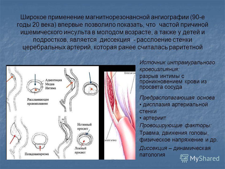 Широкое применение магнитнорезонансной ангиографии (90-е годы 20 века) впервые позволило показать, что частой причиной ишемического инсульта в молодом возрасте, а также у детей и подростков, является диссекция - расслоение стенки церебральных артерий