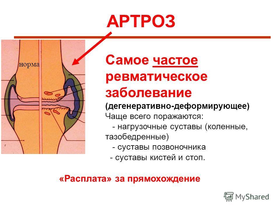 АРТРОЗ норма Самое частое ревматическое заболевание (дегенеративно-деформирующее) Чаще всего поражаются: - нагрузочные суставы (коленные, тазобедренные) - суставы позвоночника - суставы кистей и стоп. «Расплата» за прямохождение