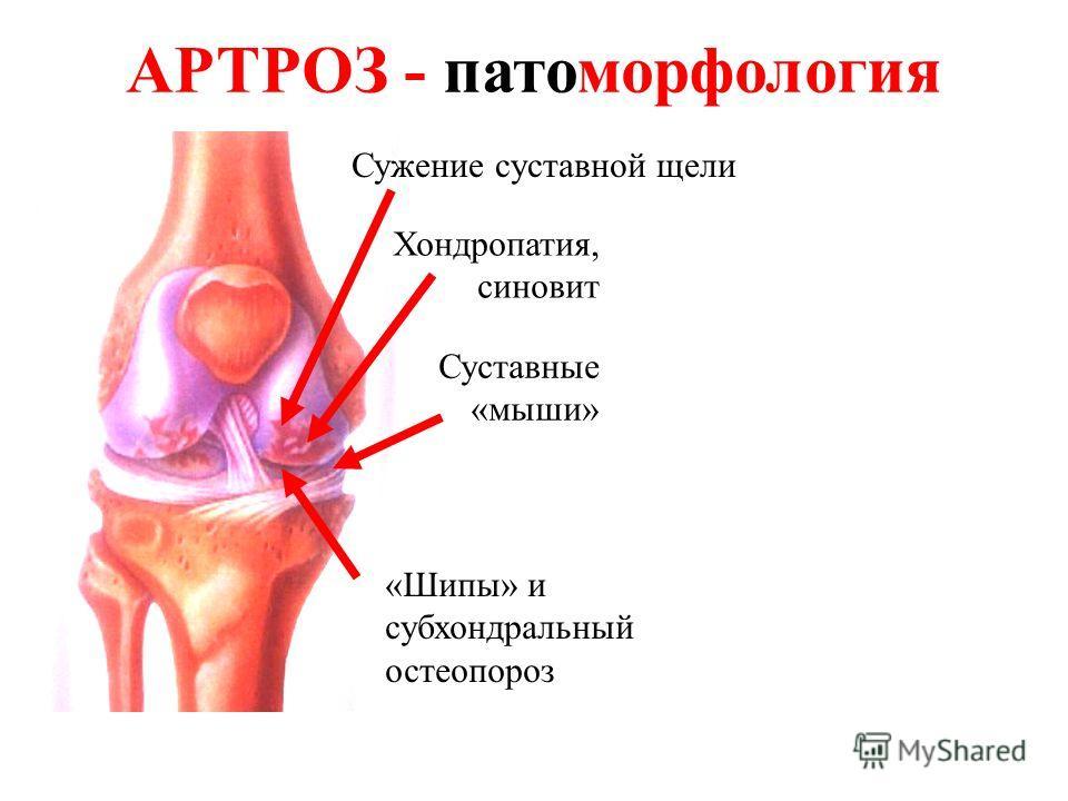 Хондропатия, синовит «Шипы» и субхондральный остеопороз Сужение суставной щели АРТРОЗ - патоморфология Суставные «мыши»