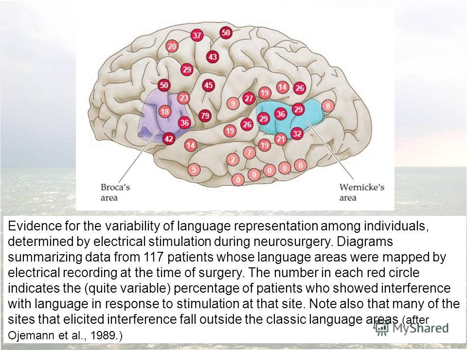 Evidence for the variability of language representation among individuals, determined by electrical stimulation during neurosurgery. Diagrams summarizing data from 117 patients whose language areas were mapped by electrical recording at the time of s
