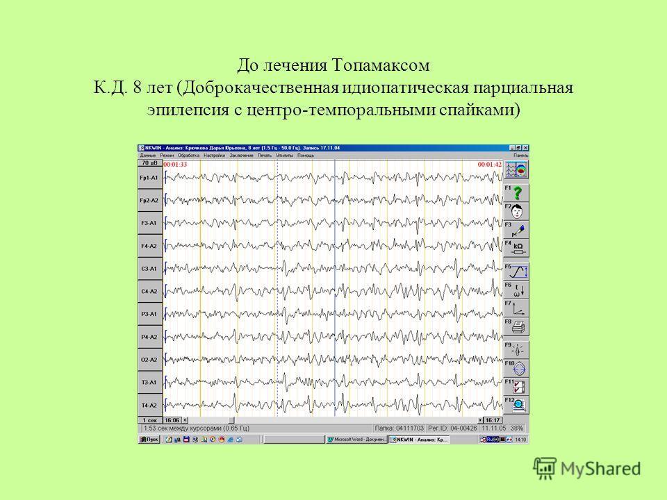 До лечения Топамаксом К.Д. 8 лет (Доброкачественная идиопатическая парциальная эпилепсия с центро-темпоральными спайками)