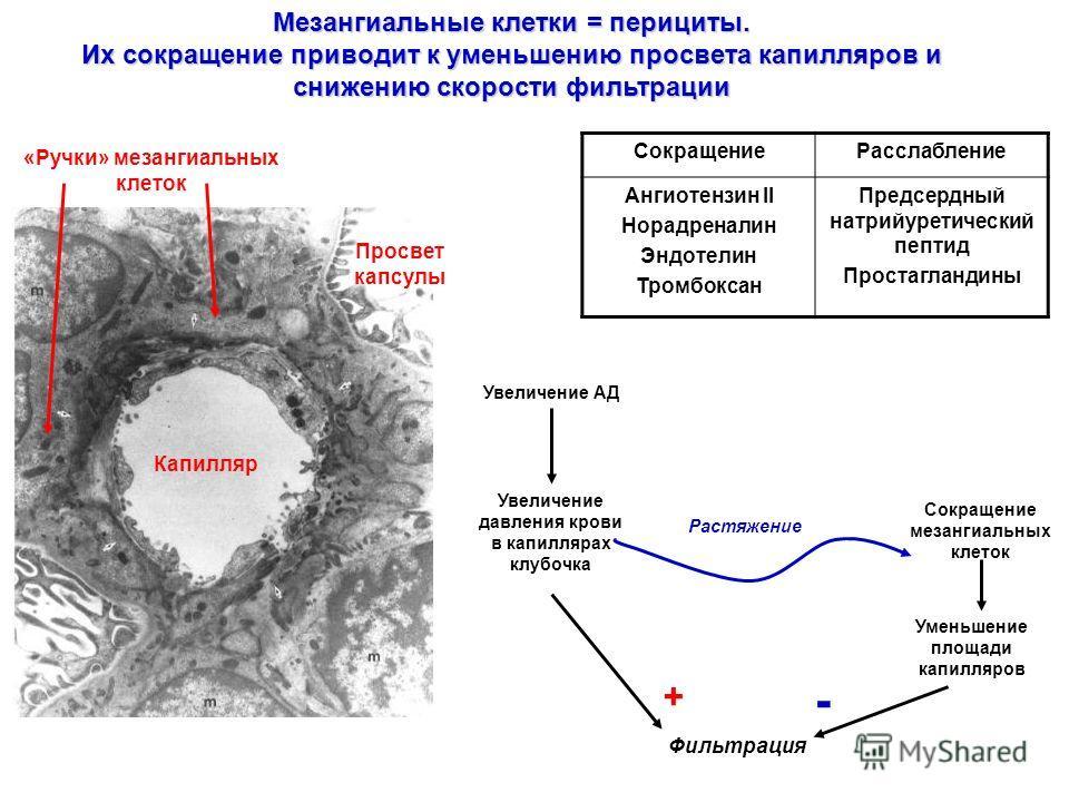 Мезангиальные клетки = перициты. Их сокращение приводит к уменьшению просвета капилляров и снижению скорости фильтрации Капилляр Просвет капсулы «Ручки» мезангиальных клеток СокращениеРасслабление Ангиотензин II Норадреналин Эндотелин Тромбоксан Пред