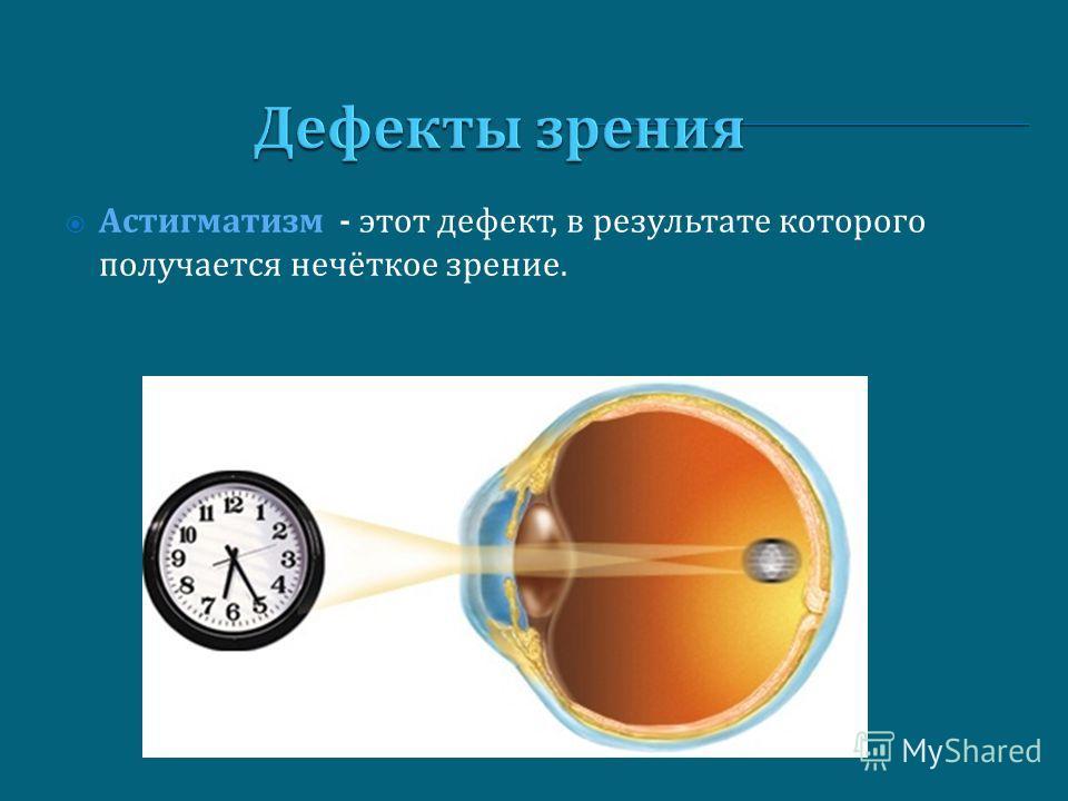 Дефекты зрения Астигматизм - этот дефект, в результате которого получается нечёткое зрение.