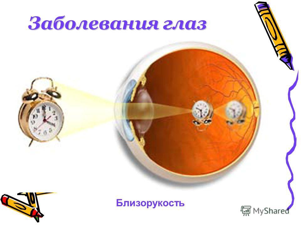 Заболевания глаз Близорукость
