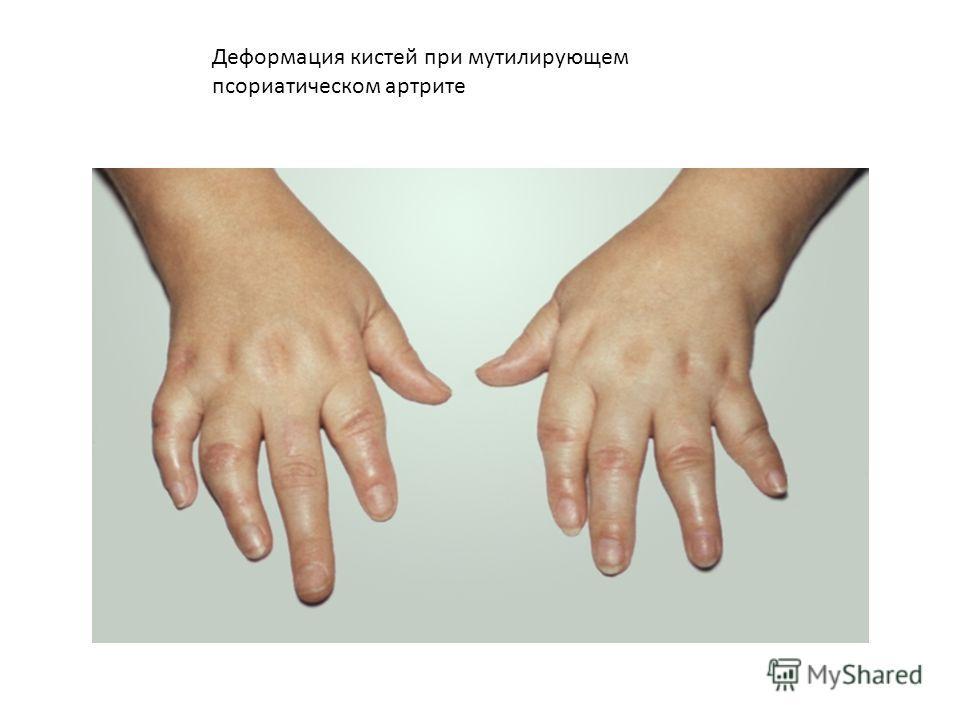 Деформация кистей при мутилирующем псориатическом артрите