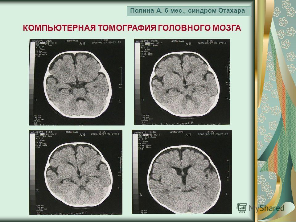Полина А. 6 мес., синдром Отахара КОМПЬЮТЕРНАЯ ТОМОГРАФИЯ ГОЛОВНОГО МОЗГА