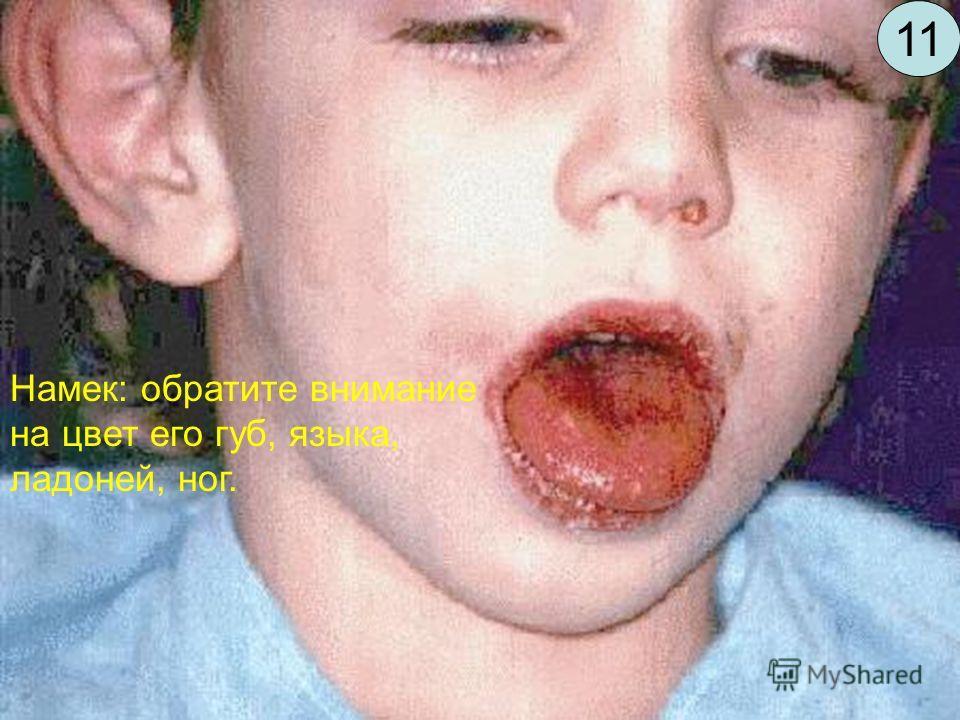 Этот 5-летний мальчик жалуется на лихорадку до 39С в течении 6 дней. Каков диагноз? Намек: обратите внимание на цвет его губ, языка, ладоней, ног. 11