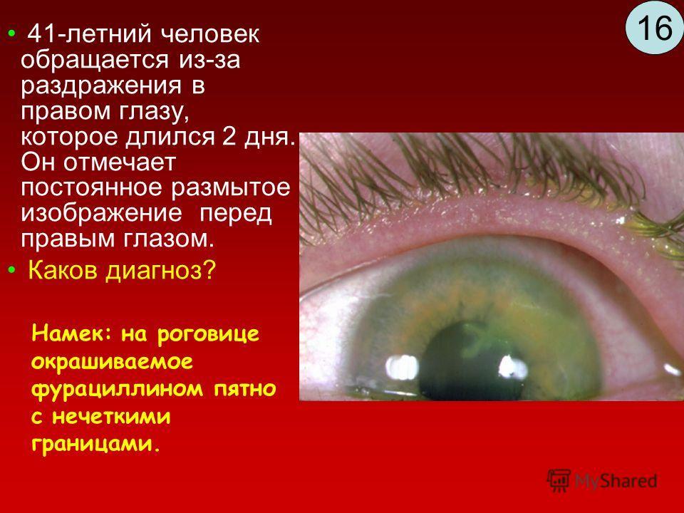 41-летний человек обращается из-за раздражения в правом глазу, которое длился 2 дня. Он отмечает постоянное размытое изображение перед правым глазом. Каков диагноз? Намек: на роговице окрашиваемое фурациллином пятно с нечеткими границами. 16