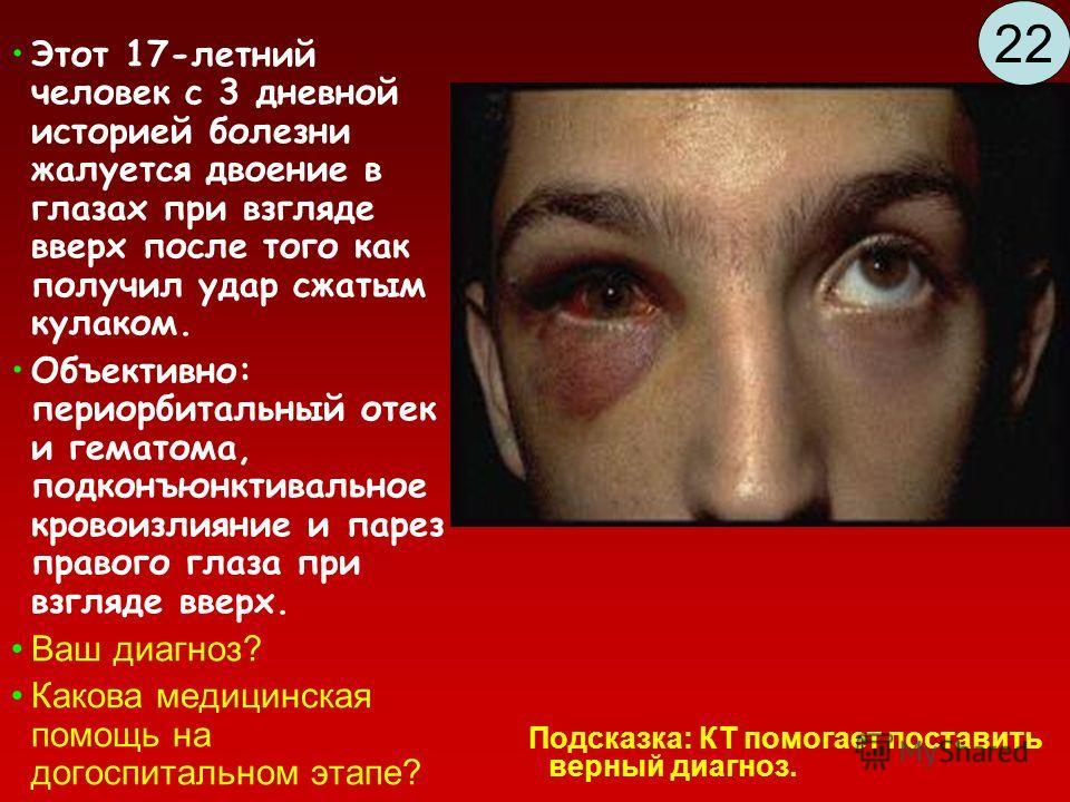 Этот 17-летний человек с 3 дневной историей болезни жалуется двоение в глазах при взгляде вверх после того как получил удар сжатым кулаком. Объективно: периорбитальный отек и гематома, подконъюнктивальное кровоизлияние и парез правого глаза при взгля