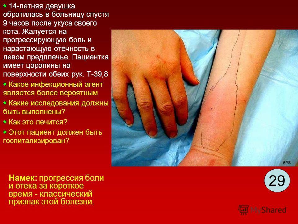 14-летняя девушка обратилась в больницу спустя 9 часов после укуса своего кота. Жалуется на прогрессирующую боль и нарастающую отечность в левом предплечье. Пациентка имеет царапины на поверхности обеих рук. T-39,8 Какое инфекционный агент является б