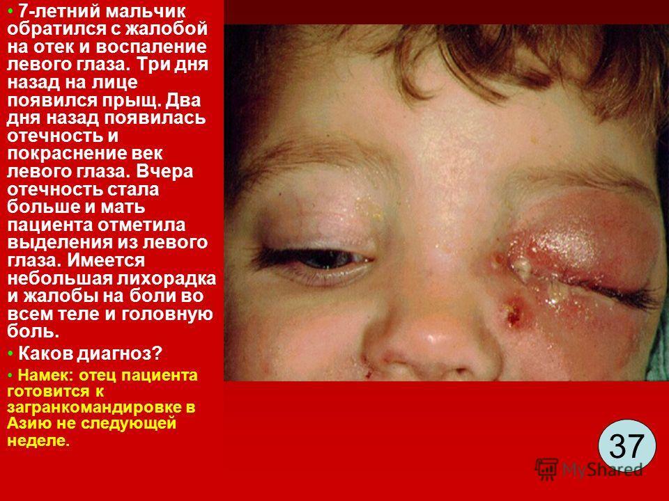3737 7-летний мальчик обратился с жалобой на отек и воспаление левого глаза. Три дня назад на лице появился прыщ. Два дня назад появилась отечность и покраснение век левого глаза. Вчера отечность стала больше и мать пациента отметила выделения из лев