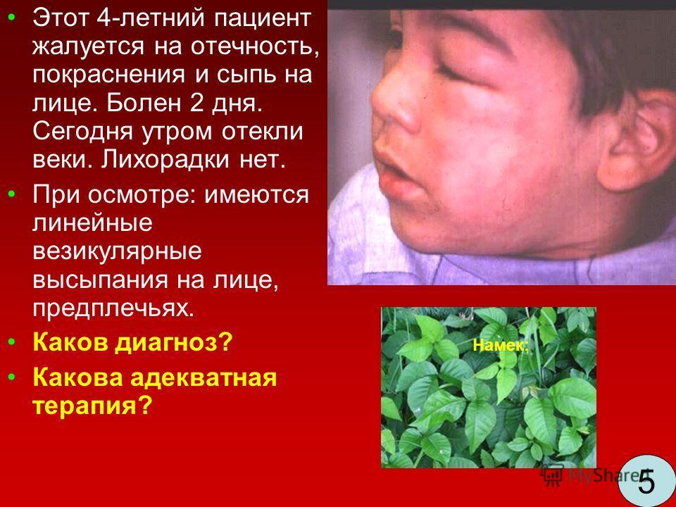 Этот 4-летний пациент жалуется на отечность, покраснения и сыпь на лице. Болен 2 дня. Сегодня утром отекли веки. Лихорадки нет. При осмотре: имеются линейные везикулярные высыпания на лице, предплечьях. Каков диагноз? Какова адекватная терапия? Намек