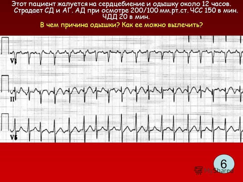 Этот пациент жалуется на сердцебиение и одышку около 12 часов. Страдает СД и АГ. АД при осмотре 200/100 мм.рт.ст. ЧСС 150 в мин. ЧДД 20 в мин. В чем причина одышки? Как ее можно вылечить? 6