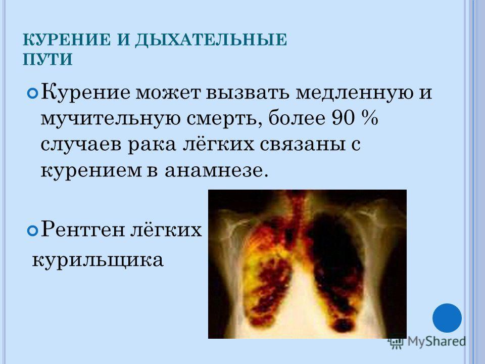 КУРЕНИЕ И ДЫХАТЕЛЬНЫЕ ПУТИ Курение может вызвать медленную и мучительную смерть, более 90 % случаев рака лёгких связаны с курением в анамнезе. Рентген лёгких курильщика