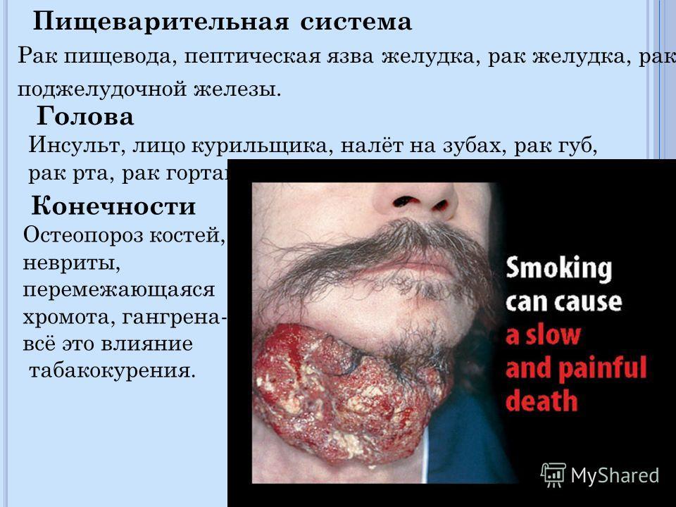 Пищеварительная система Рак пищевода, пептическая язва желудка, рак желудка, рак поджелудочной железы. Голова Инсульт, лицо курильщика, налёт на зубах, рак губ, рак рта, рак гортани. Конечности Остеопороз костей, невриты, перемежающаяся хромота, ганг