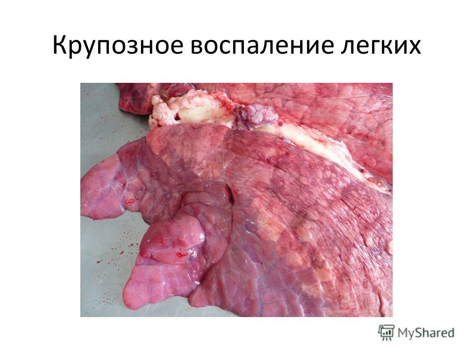 Крупозное воспаление легких