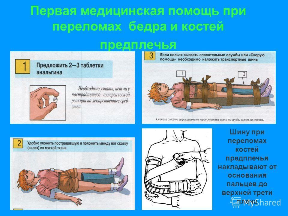 Первая медицинская помощь при переломах бедра и костей предплечья Шину при переломах костей предплечья накладывают от основания пальцев до верхней трети плеча