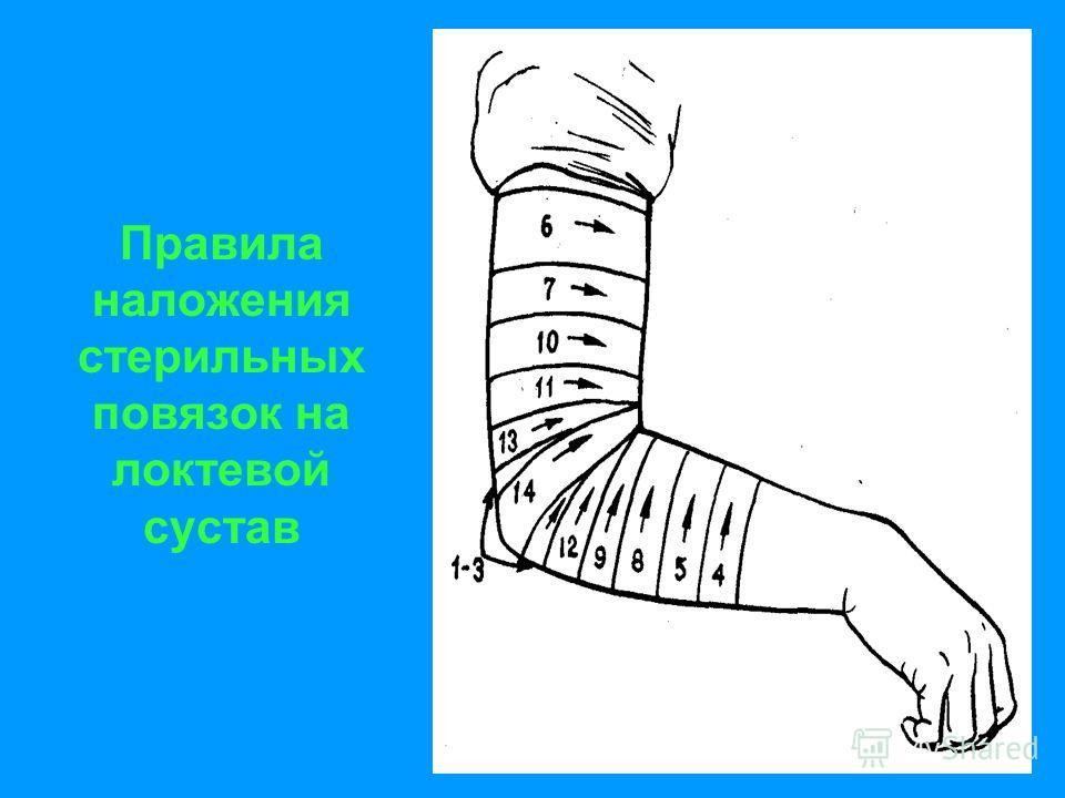 Правила наложения стерильных повязок на локтевой сустав
