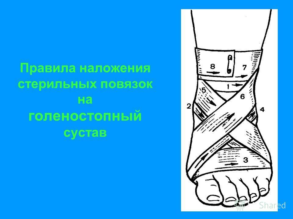 Правила наложения стерильных повязок на голеностопный сустав