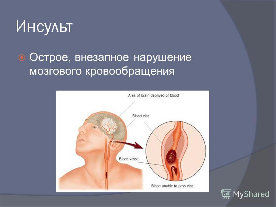 Инсульт Острое, внезапное нарушение мозгового кровообращения