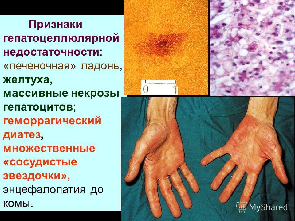 Признаки гепатоцеллюлярной недостаточности: «печеночная» ладонь, желтуха, массивные некрозы гепатоцитов; геморрагический диатез, множественные «сосудистые звездочки», энцефалопатия до комы.