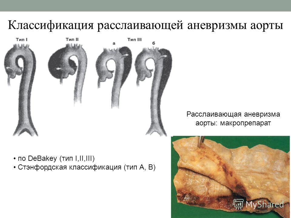 Классификация расслаивающей аневризмы аорты Расслаивающая аневризма аорты: макропрепарат по DeBakey (тип I,II,III) Стэнфордская классификация (тип А, В)