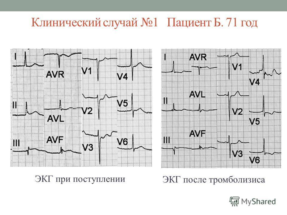 Клинический случай 1 Пациент Б. 71 год ЭКГ при поступлении ЭКГ после тромболизиса