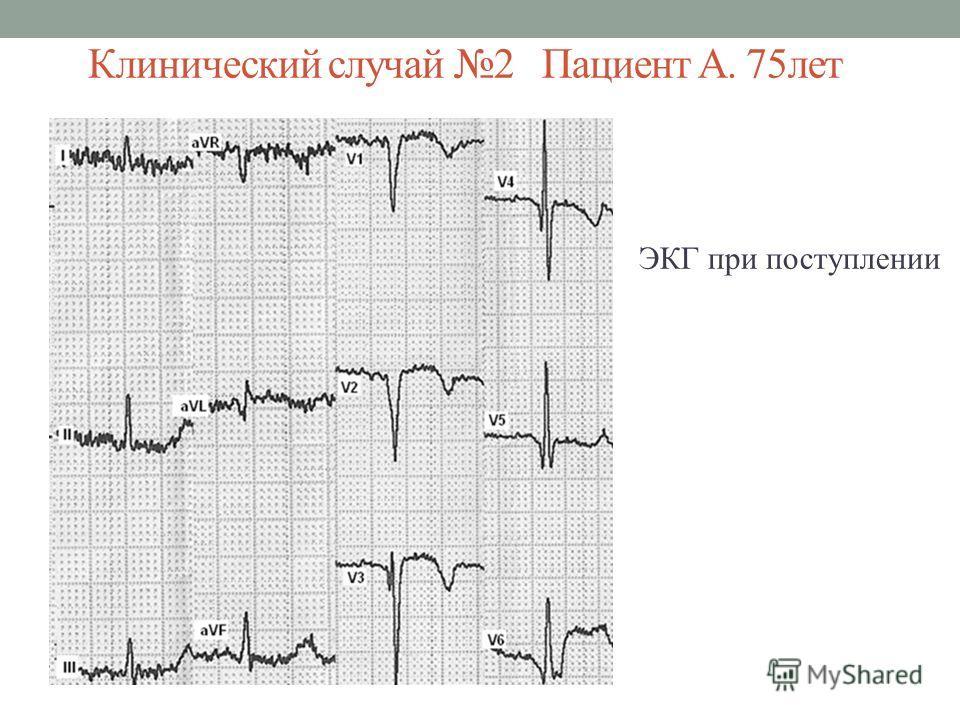 Клинический случай 2 Пациент А. 75лет ЭКГ при поступлении