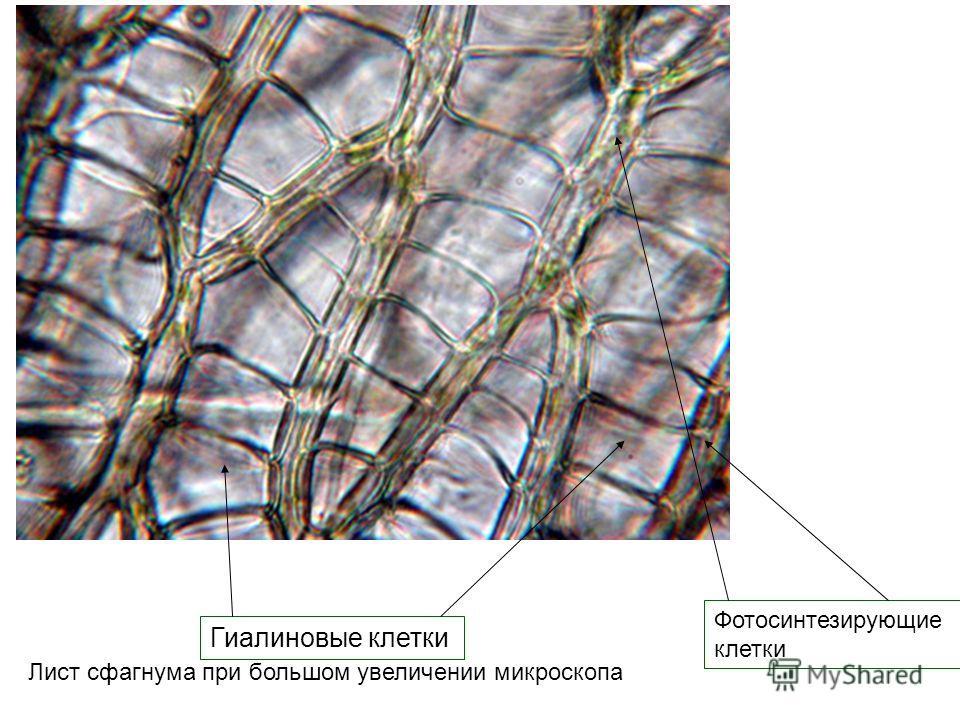Гиалиновые клетки Фотосинтезирующие клетки Лист сфагнума при большом увеличении микроскопа