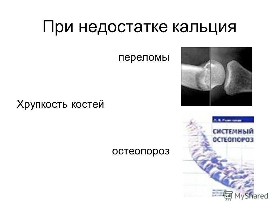 При недостатке кальция переломы Хрупкость костей остеопороз