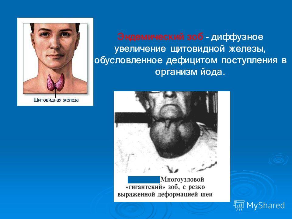 Эндемический зоб - диффузное увеличение щитовидной железы, обусловленное дефицитом поступления в организм йода.