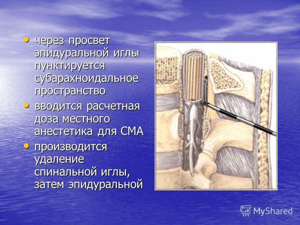 через просвет эпидуральной иглы пунктируется субарахноидальное пространство через просвет эпидуральной иглы пунктируется субарахноидальное пространство вводится расчетная доза местного анестетика для СМА вводится расчетная доза местного анестетика дл