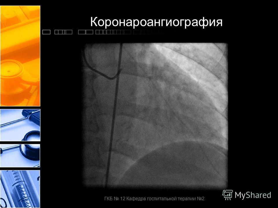 Коронароангиография ГКБ 12 Кафедра госпитальной терапии 2