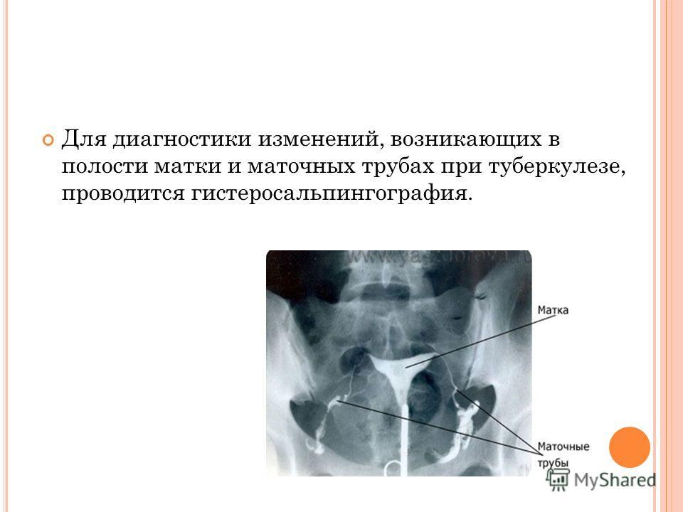 Для диагностики изменений, возникающих в полости матки и маточных трубах при туберкулезе, проводится гистеросальпингография.