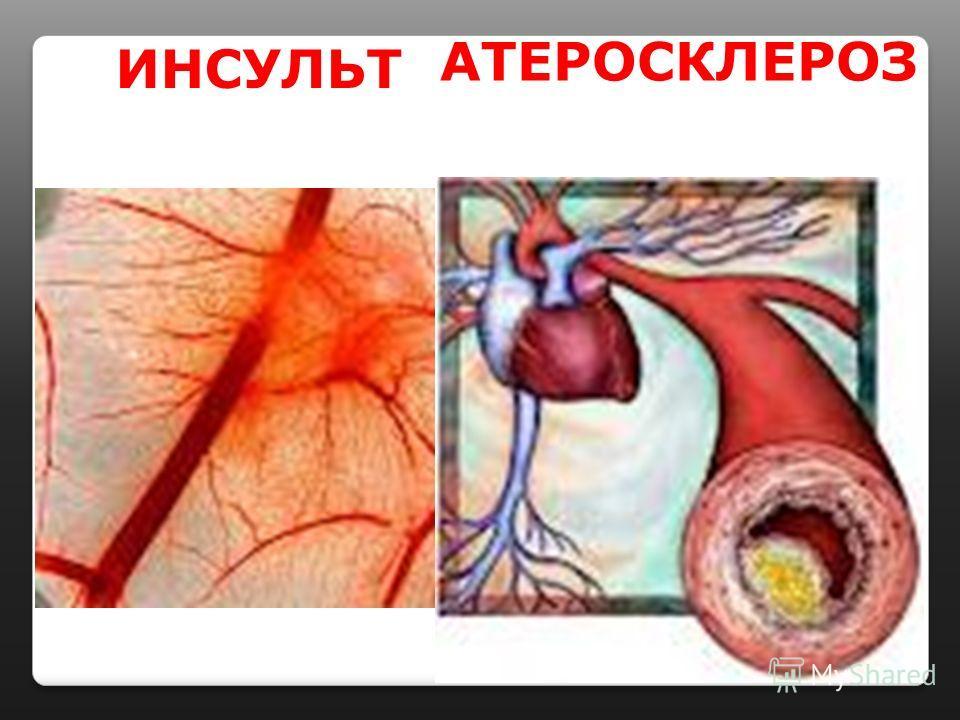 ИНСУЛЬТ АТЕРОСКЛЕРОЗ