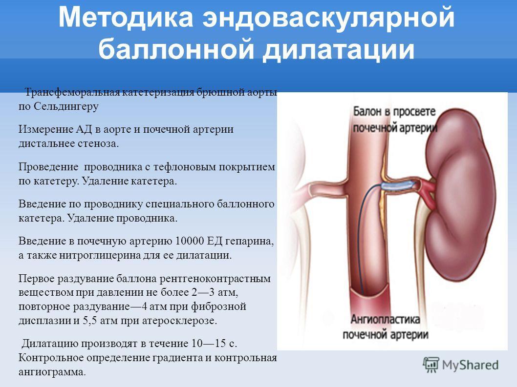 Методика эндоваскулярной баллонной дилатации Трансфеморальная катетеризация брюшной аорты по Сельдингеру Измерение АД в аорте и почечной артерии дистальнее стеноза. Проведение проводника с тефлоновым покрытием по катетеру. Удаление катетера. Введение