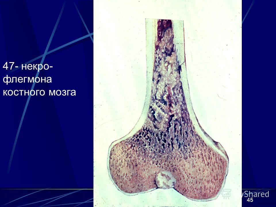 45 47- некро- флегмона костного мозга
