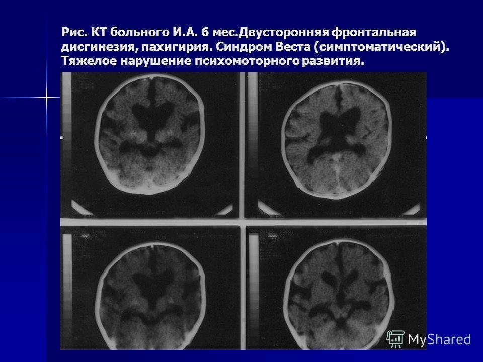 Рис. КТ больного И.А. 6 мес.Двусторонняя фронтальная дисгинезия, пахигирия. Синдром Веста (симптоматический). Тяжелое нарушение психомоторного развития.