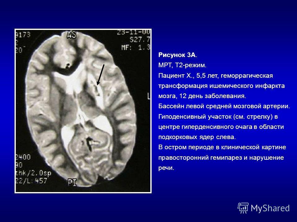Рисунок 3А. МРТ, Т2-режим. Пациент Х., 5,5 лет, геморрагическая трансформация ишемического инфаркта мозга, 12 день заболевания. Бассейн левой средней мозговой артерии. Гиподенсивный участок (см. стрелку) в центре гиперденсивного очага в области подко