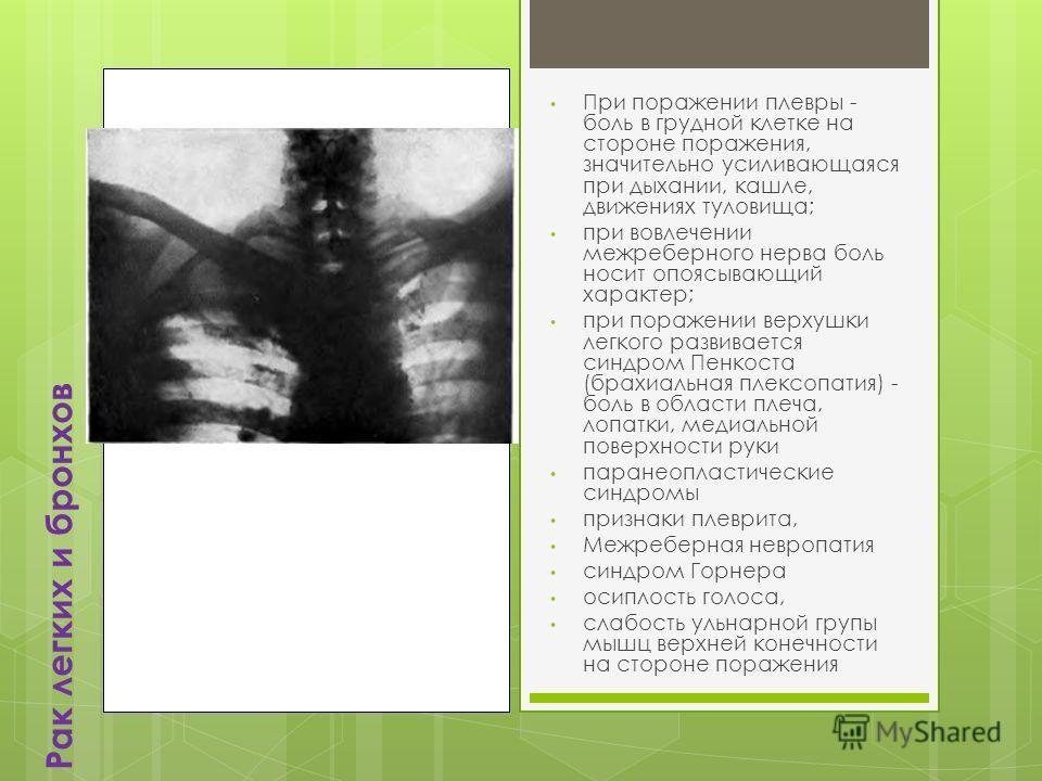 Рак легких и бронхов При поражении плевры - боль в грудной клетке на стороне поражения, значительно усиливающаяся при дыхании, кашле, движениях туловища; при вовлечении межреберного нерва боль носит опоясывающий характер; при поражении верхушки легко
